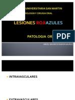 LESIONES ROJIAZULES mauricio
