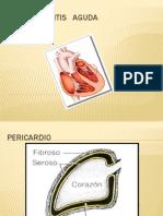 Presentacion Pericarditis REAL