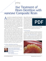 Conservative Treatment of Anterior Worn Dentition With Adhesive Composite Resin