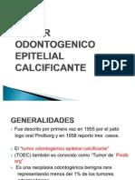 Tumor Odontogenico Epitelial Calcificante