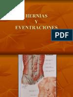 (05) Hernias y Eventraciones en Power Point