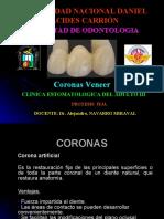 Coronas Veneer