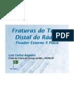 Fracturas Distais do Rádio. Fixador Externo X Placa. Luis Carlos Angellini, Walter Targa