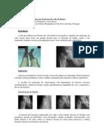 Fixação com parafusos nas fracturas do colo do fémur. Pedro Lourenço, Maia Gonçalves e José Neves