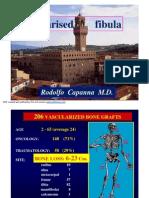 Vascularised fibula. Rodolfo Capanna