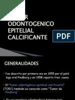 56104641 Tumor Odontogenico Epitelial Calcificante