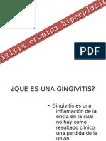 Gingivitis Cronica Hiperplasica