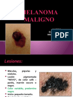 8.2 Melanoma Maligno Evy