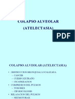 Colapso Relleno Alveolar