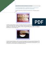 Blanqueamiento Dental Diente No Vital