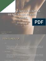 ALTERAÇÃO FUNCIONAL BENIGNA DA MAMA - AFBM