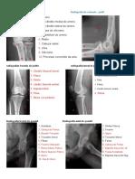 Radiografia Do Cotovelo