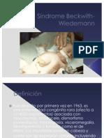 Síndrome Beckwith-Wiedemann