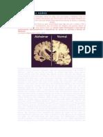 Alzheimer e o Xadrez