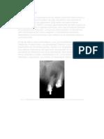 Granuloma Apical 1