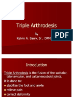Triple Arthrodesis