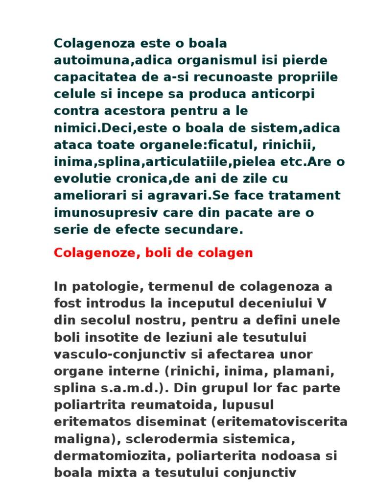 boli de țesut conjunctiv sistemic autoimun