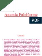 Anemia Falciforme IISLIDES