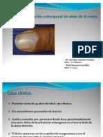1.-Tumor glómico