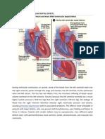 pathophysiology CHD