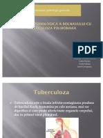 Structura Psihologica a Bolnavului Cu Tuberculoza Pulmonara