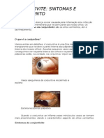 A conjuntivite é a doença ocular causada pela inflamação e