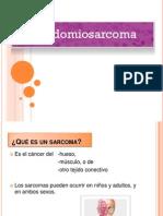 Rabdomiosarcoma Ppt