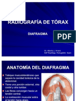 RADIOGRAFÍA DE TÓRAX. PATRONES RADIOLÓGICOS. DIAFRAGMA