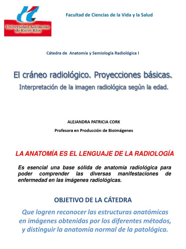 8. El cráneo radiológico. Proyecciones básicas. Interpretación de la ...