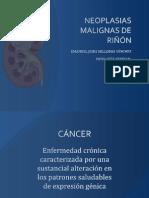 NEOPLASIAS MALIGNAS DE RIÑÓN_Patologia