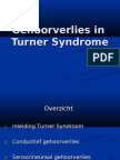Gehoorsverlies in Turner Syndrome