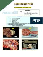 Adenocarcinomul Colo-rectal 1