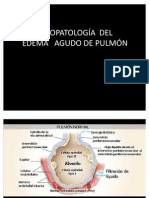 8 Fisiopatología del edema agudo de pulmón