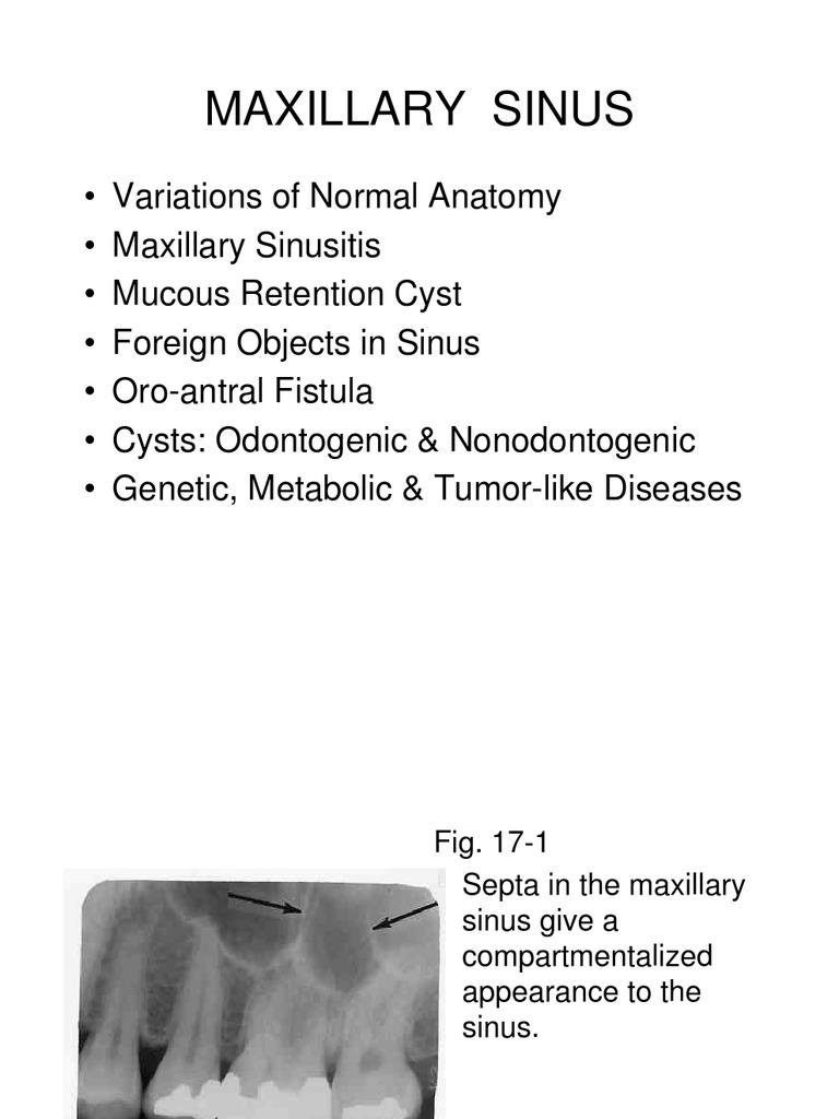 Chapter 17 Maxillary Sinus.slides | Mucus | Medical Specialties
