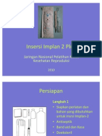 Insersi Implan 2 Plus