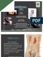 sindromes prostaticos