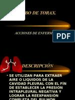 179219-TUBO-DE-TORAX