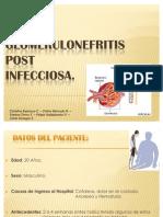 Glomerulonefritis post