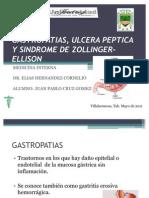 Gastropatias Ulcera Peptica y Sindrome de Zollinger-ellison
