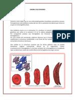 Anemia Falciformes Limpio