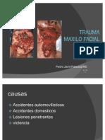Trauma Maxilo Facial