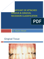 Significant of Attached Gingiva & Gingival Recession Classification