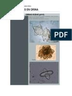 ORINAS ÁCIDAS y ALCALINAS (cristales)