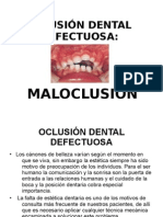 1.5 Oclusin Dental Defectuosa 2