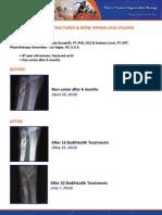 Non Union Fractures Bone Repair Case Studies
