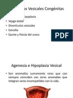 Anomalías Vesicales Congénitas