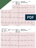 Universal ECG Sample Reports