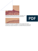 Psoriase Imagens Histology of Psoriasis