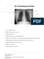 ABC of Reading Chest Xray