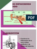 Tipos de Infecciones en El Oido Nohemi